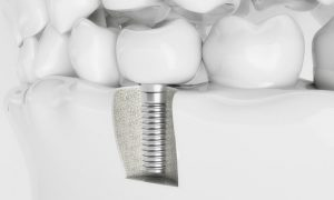 Does Getting a Dental Implant Hurt?