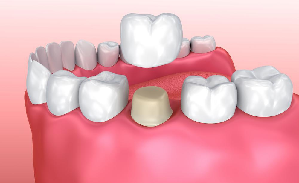 Forget the Temps: Now Get Dental Crowns in One Visit
