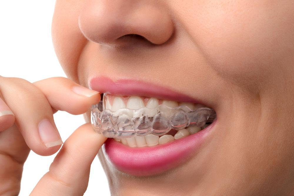 5 Fantastic Facts You Didn't Know About Invisalign