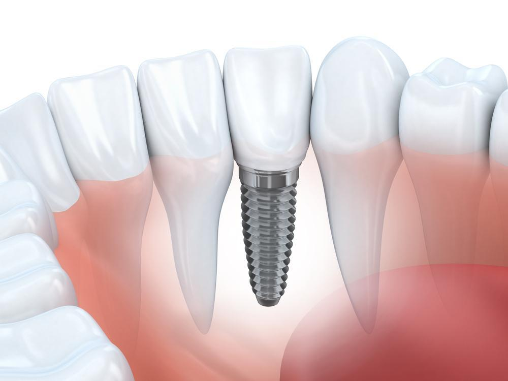 Your Bone Loss Could Make You a Great Candidate for Dental Implants