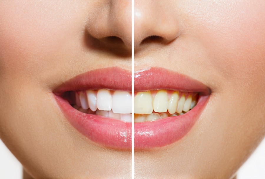 A patient who received teeth whitening treatment near Scranton, PA